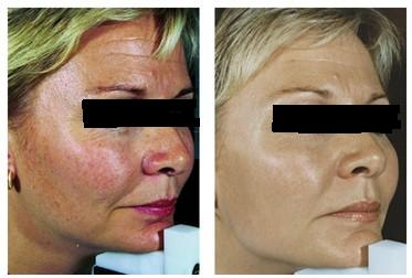 Facial redness Removing